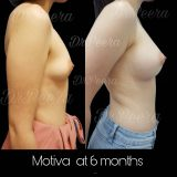 Pscclinic 160x160 - Breast Lifting ( ผ่าตัดยกกระชับเต้านม )