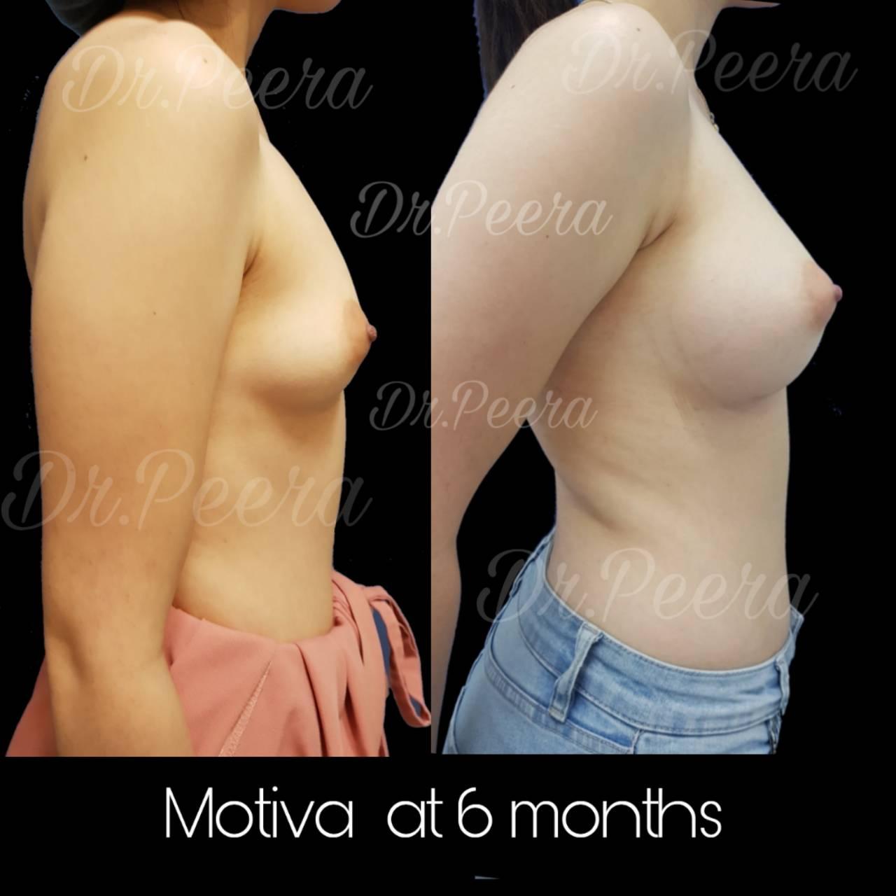 Pscclinic - รีวิว เสริมหน้าอก Breast augmentation ตอนที่ 2/2