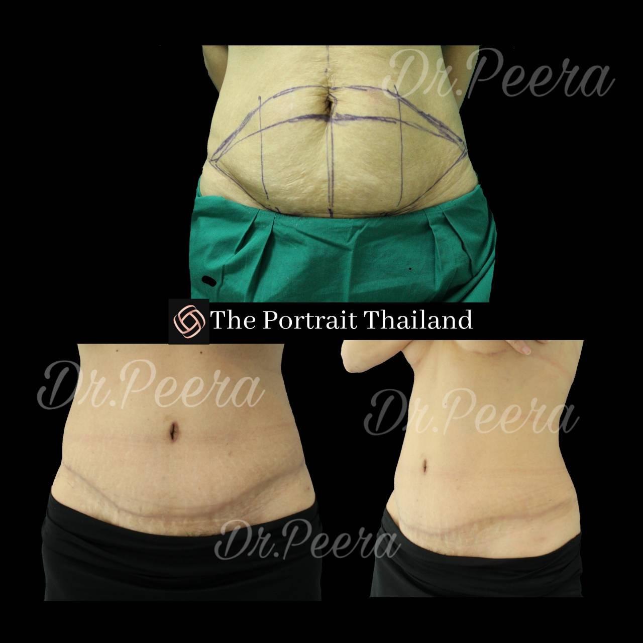.jpg - abdominoplasty (ผ่าตัดกระชับหน้าท้อง)