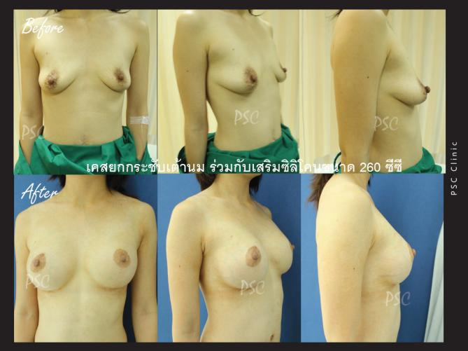 1 12 58 55 1246 - Breast Lifting ( ผ่าตัดยกกระชับเต้านม )