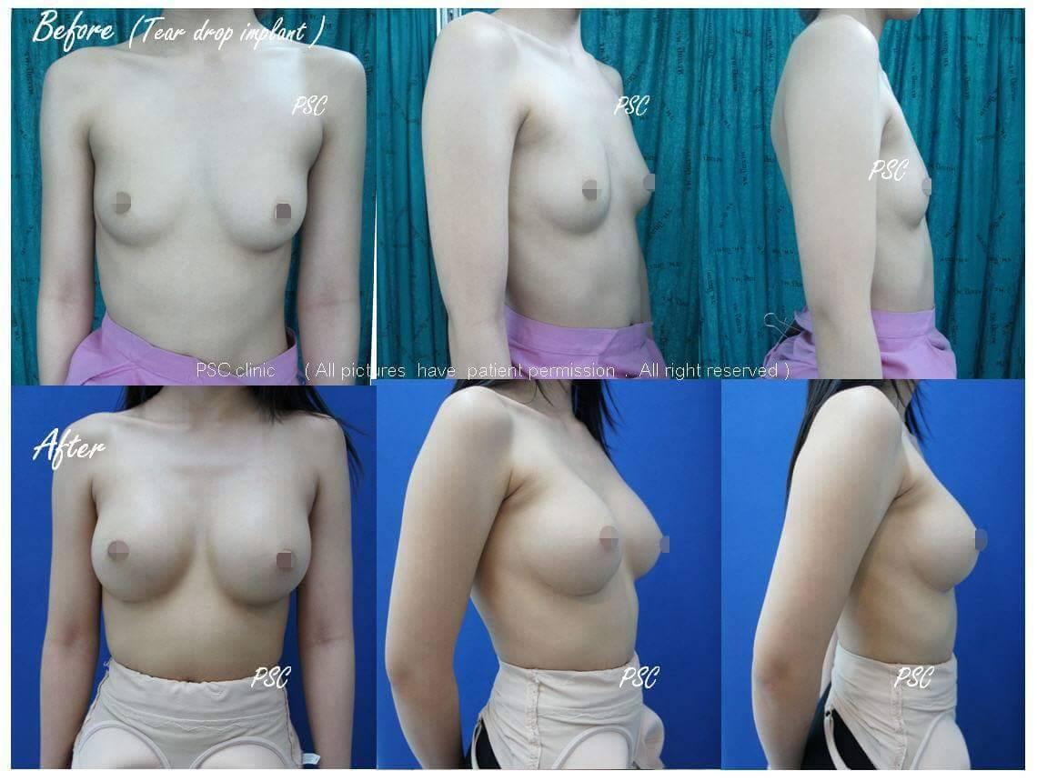 11545 - รีวิว เสริมหน้าอก Breast augmentation ตอนที่ 1/2