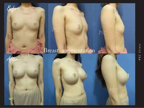 11549 - รีวิว เสริมหน้าอก Breast augmentation ตอนที่ 1/2