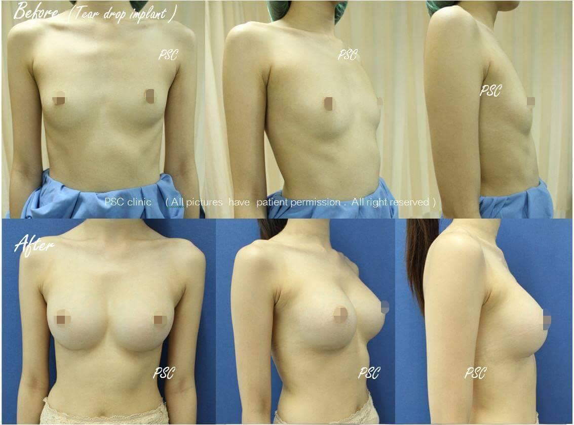 11551 - รีวิว เสริมหน้าอก Breast augmentation ตอนที่ 1/2