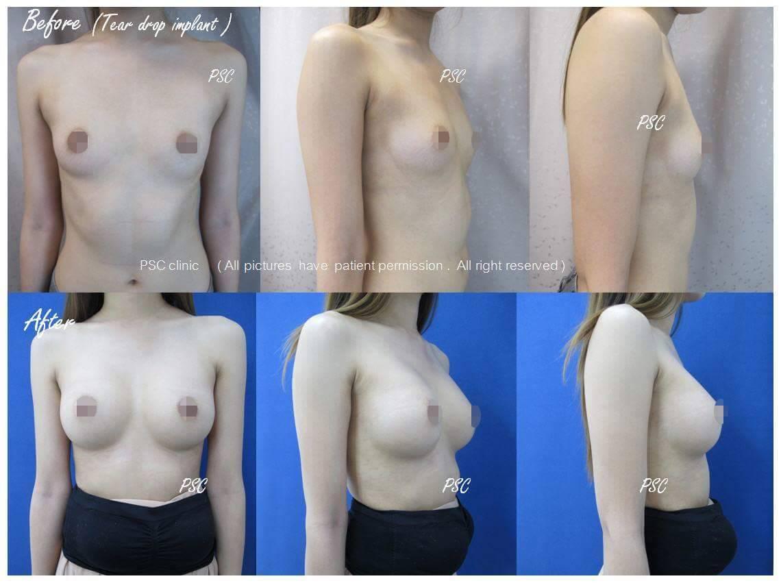 11552 - รีวิว เสริมหน้าอก Breast augmentation ตอนที่ 1/2