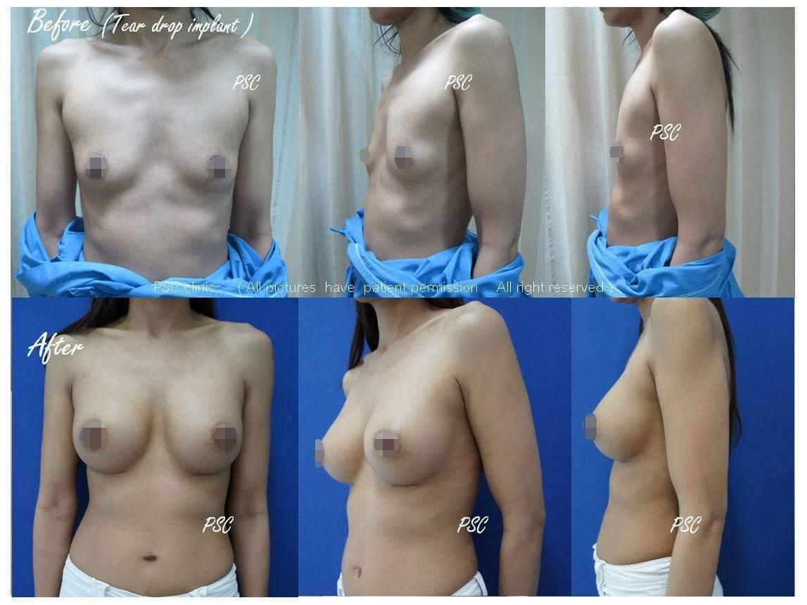 11557 - รีวิว เสริมหน้าอก Breast augmentation ตอนที่ 1/2