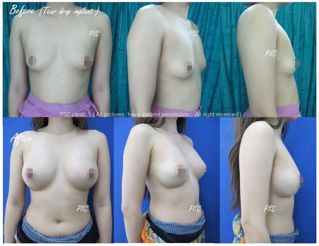 11559 - รีวิว เสริมหน้าอก Breast augmentation ตอนที่ 1/2