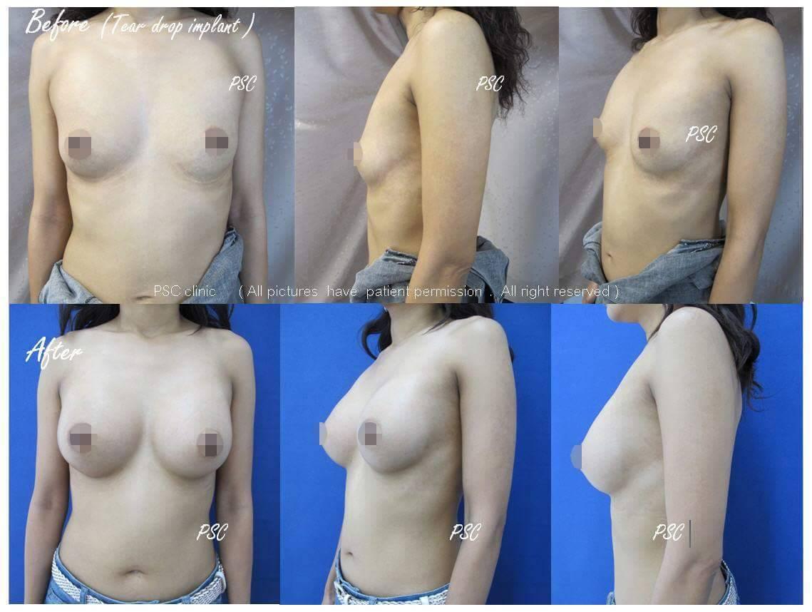 11560 - รีวิว เสริมหน้าอก Breast augmentation ตอนที่ 1/2