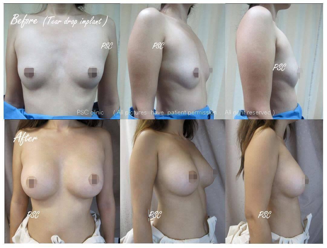 11561 - รีวิว เสริมหน้าอก Breast augmentation ตอนที่ 1/2