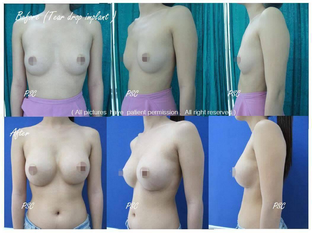 11563 - รีวิว เสริมหน้าอก Breast augmentation ตอนที่ 1/2