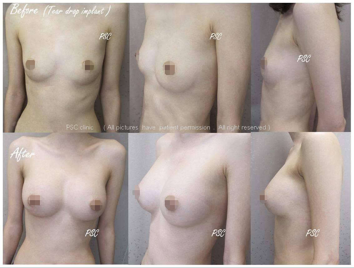 11564 - รีวิว เสริมหน้าอก Breast augmentation ตอนที่ 1/2