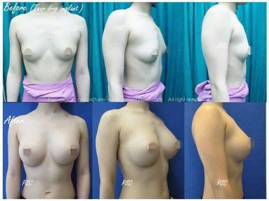 11565 - รีวิว เสริมหน้าอก Breast augmentation ตอนที่ 1/2