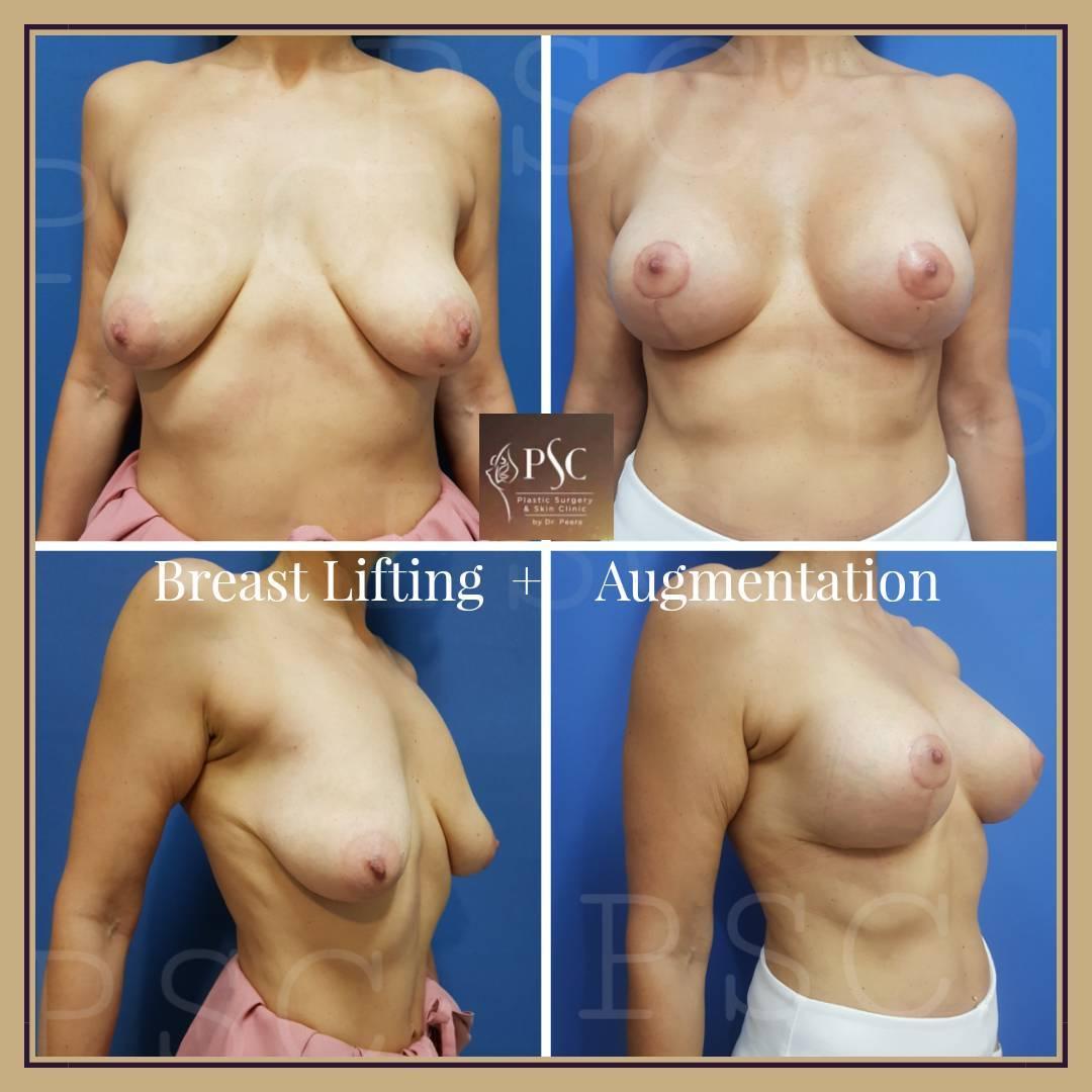 508275 - Breast Lifting ( ผ่าตัดยกกระชับเต้านม )