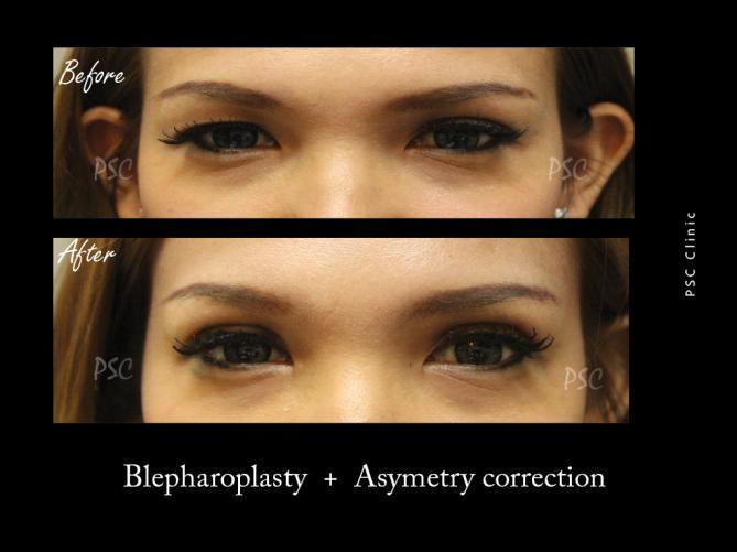 53 1490 - Blepharoplasty ( ตกแต่งชั้นตา )