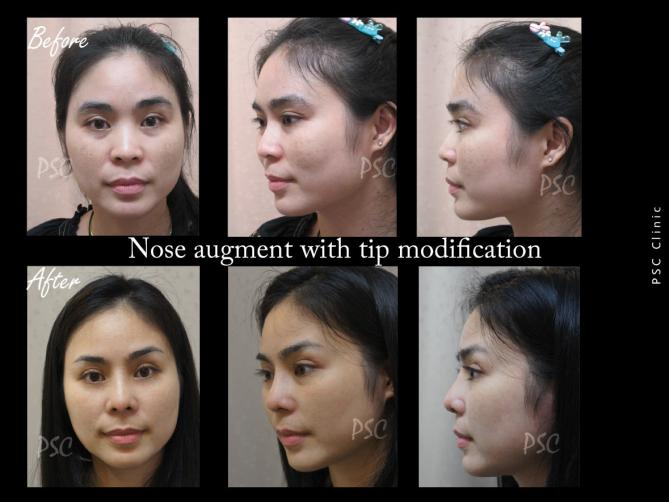 53 2265 - Nose augmentation ( เสริมจมูก )