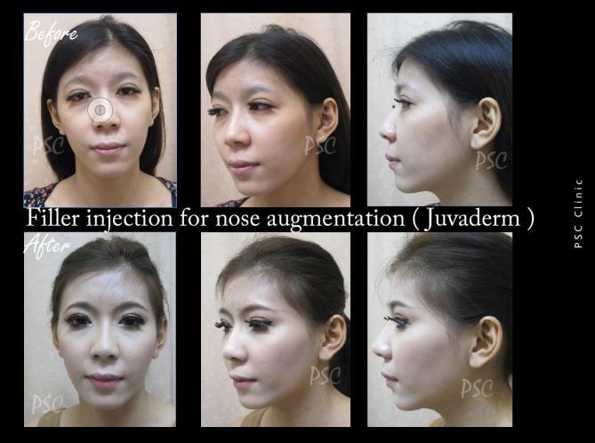 53 600 filler - Nose augmentation ( เสริมจมูก )
