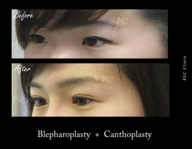 53 84 oblique - Blepharoplasty ( ตกแต่งชั้นตา )