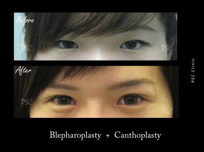 53 84 - Blepharoplasty ( ตกแต่งชั้นตา )