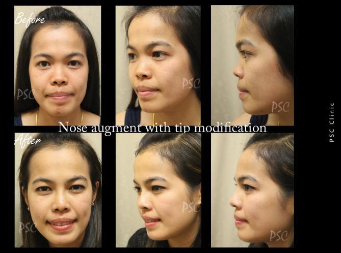 55 2545 - Nose augmentation ( เสริมจมูก )