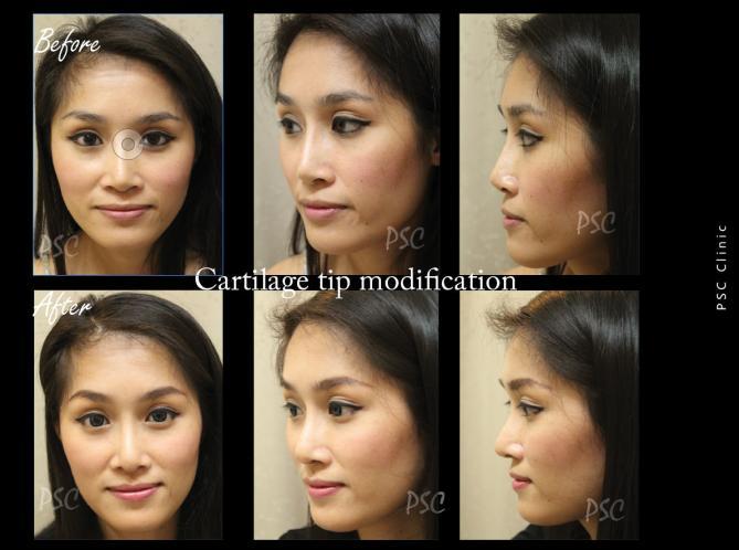 55 2827 0 - Nose augmentation ( เสริมจมูก )