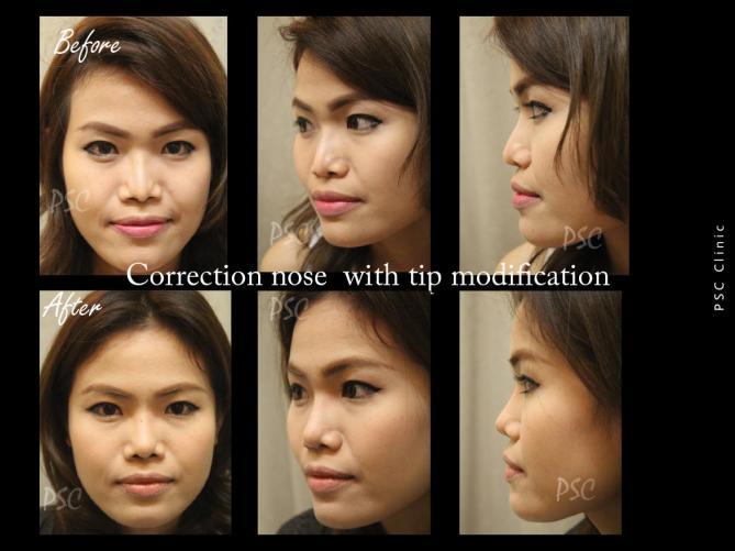 56 1298 0 - Nose augmentation ( เสริมจมูก )