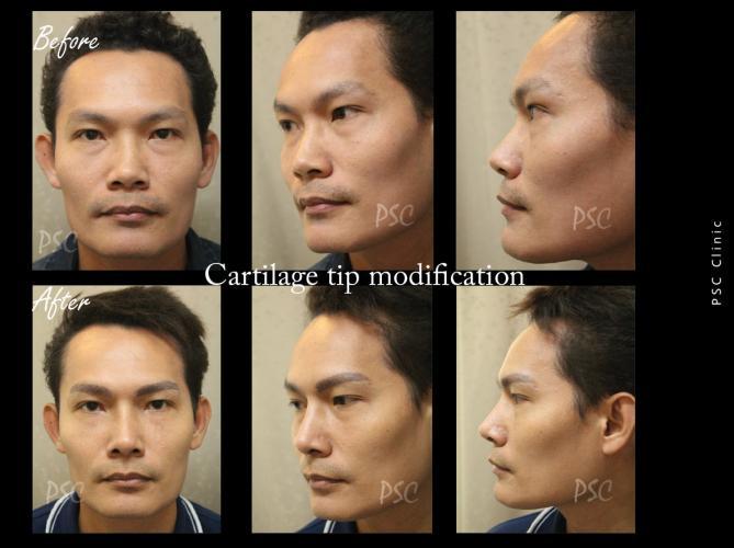 56 1330 - Nose augmentation ( เสริมจมูก )