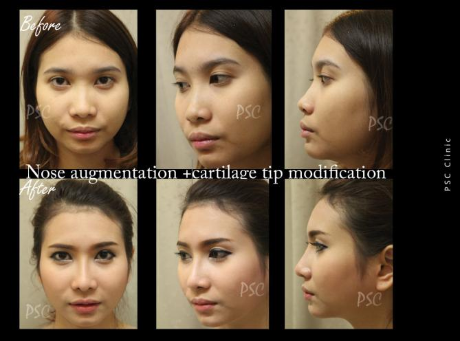 56 1469 - Nose augmentation ( เสริมจมูก )