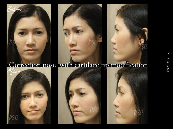 56 1828 - Nose augmentation ( เสริมจมูก )