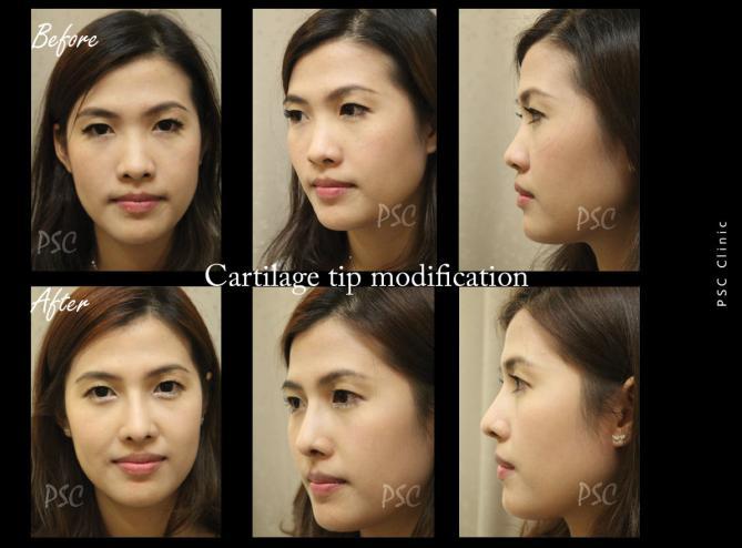56 763 - Nose augmentation ( เสริมจมูก )