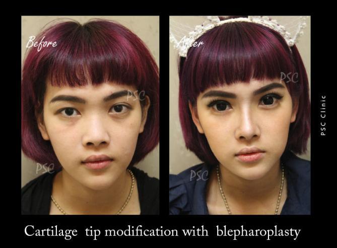 57 39 front - Blepharoplasty ( ตกแต่งชั้นตา )