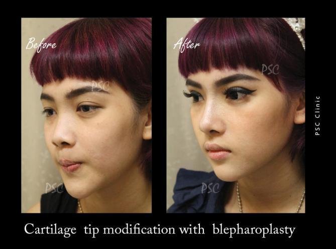 57 39 oblique 0 - Nose augmentation ( เสริมจมูก )