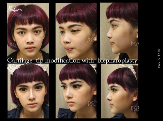 57 39 0 - Blepharoplasty ( ตกแต่งชั้นตา )