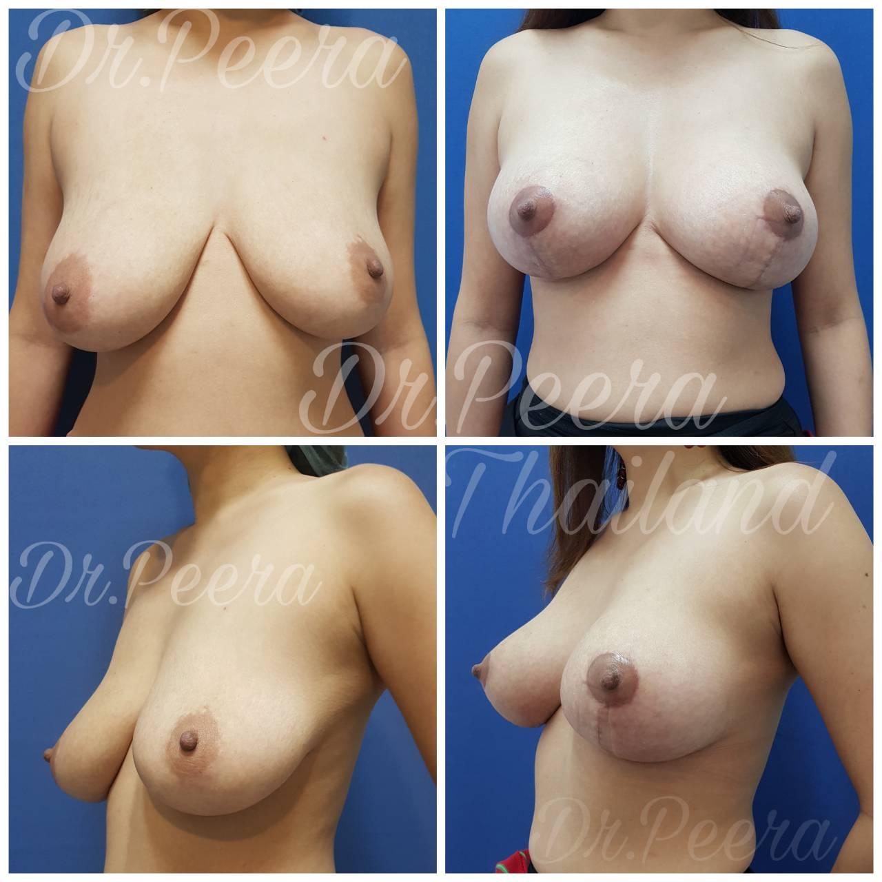 659911 - Breast Lifting ( ผ่าตัดยกกระชับเต้านม )