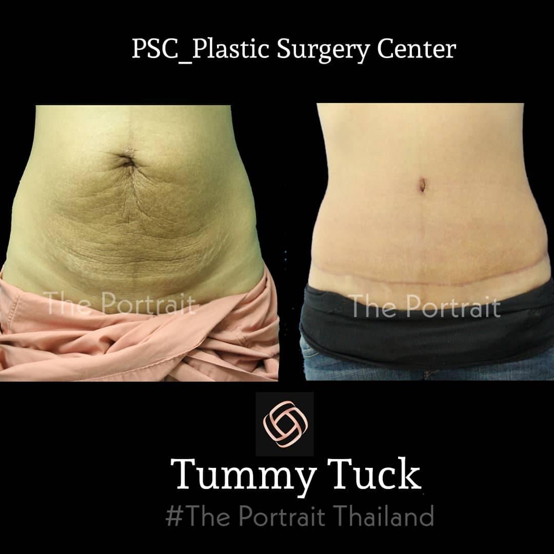 PSC 29 - abdominoplasty (ผ่าตัดกระชับหน้าท้อง)