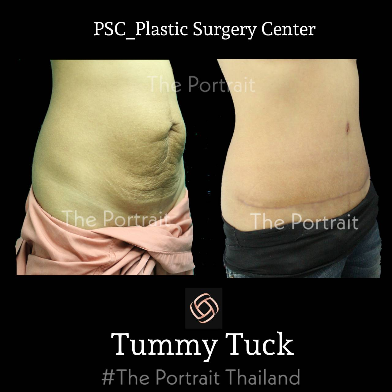 PSC 30 - abdominoplasty (ผ่าตัดกระชับหน้าท้อง)