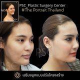 PSC 31 160x160 - Breast Lifting ( ผ่าตัดยกกระชับเต้านม )