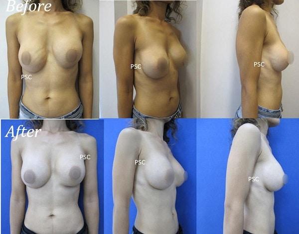 case 6 - รีวิว เสริมหน้าอก Breast augmentation ตอนที่ 1/2