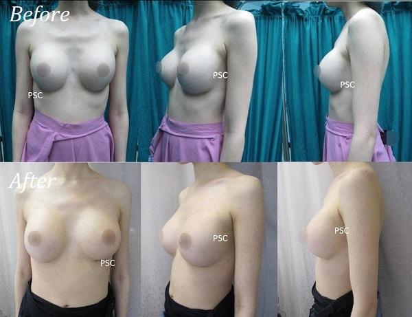 case 7 - รีวิว เสริมหน้าอก Breast augmentation ตอนที่ 1/2