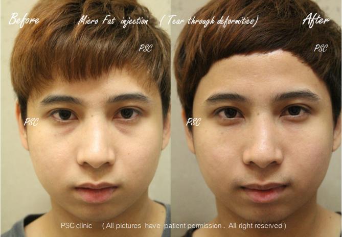 case1 164 - Facial Micro-Lipofilling Rejuvenation ( การฉีดไขมันที่หน้า เพื่อย้อนวัย)