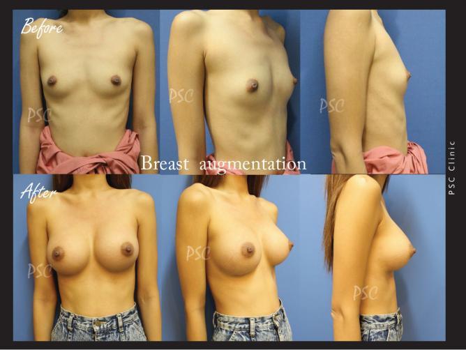 case25 - รีวิว เสริมหน้าอก Breast augmentation ตอนที่ 2/2