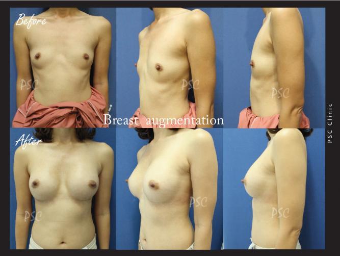 case26 - รีวิว เสริมหน้าอก Breast augmentation ตอนที่ 2/2