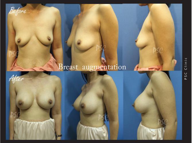 case28 - รีวิว เสริมหน้าอก Breast augmentation ตอนที่ 2/2
