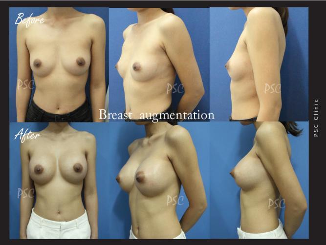 case29 - รีวิว เสริมหน้าอก Breast augmentation ตอนที่ 2/2