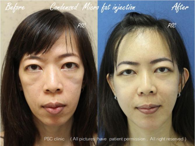 case3 2879 front - Facial Micro-Lipofilling Rejuvenation ( การฉีดไขมันที่หน้า เพื่อย้อนวัย)