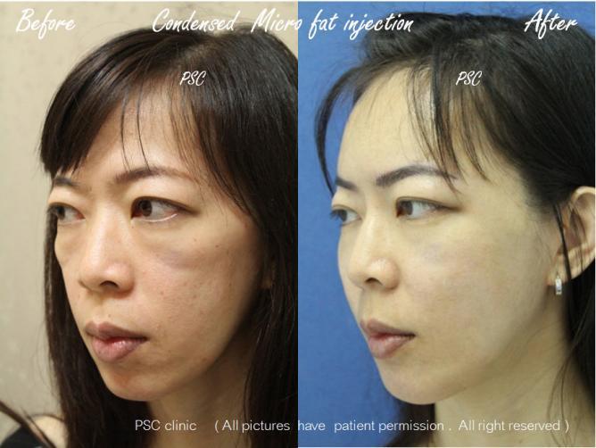 case3 2879 oblique - Facial Micro-Lipofilling Rejuvenation ( การฉีดไขมันที่หน้า เพื่อย้อนวัย)
