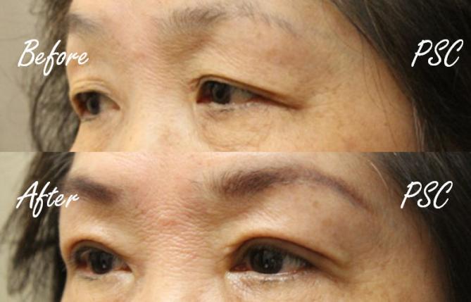 case4 2 - Blepharoplasty ( ตกแต่งชั้นตา )
