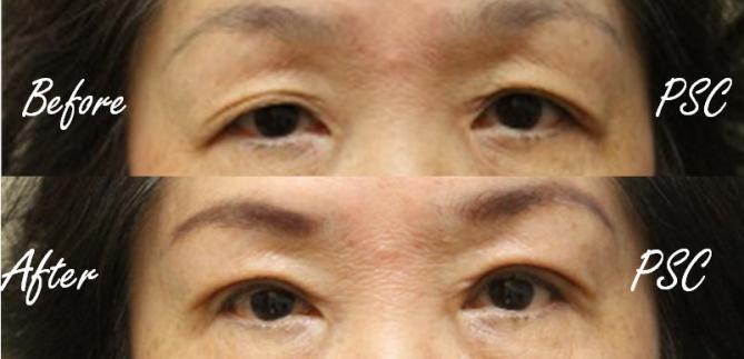 case4 - Blepharoplasty ( ตกแต่งชั้นตา )
