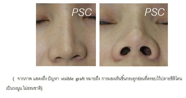 face 3 - Review เบื้องหลังการบุกเบิกเทคนิคการเสริมจมูกด้วยกระดูกอ่อน (PSC technique) การผ่าตัดการเสริมจมูกด้วยกระดูกอ่อน มาตรฐานสูงสุดของความงามและความปลอดภัยในการเสริมจมูกยุคปัจจุบัน By Dr.Peera