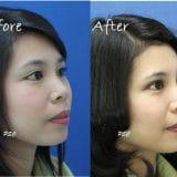 filler 1 1 e1495785192402 160x160 - คลินิกเสริมหน้าอก โดยหมอพีระ PSC Clinic ศัลยกรรมหน้าอก เสริมนม Breast Augmentation