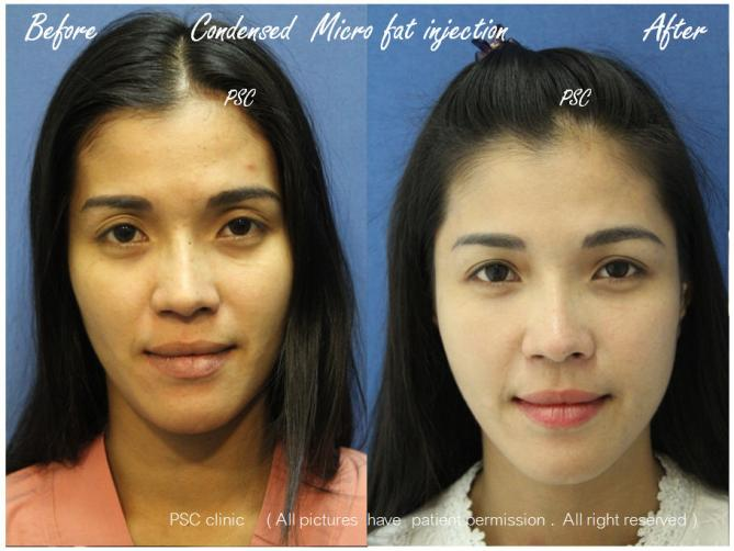 front - Facial Micro-Lipofilling Rejuvenation ( การฉีดไขมันที่หน้า เพื่อย้อนวัย)