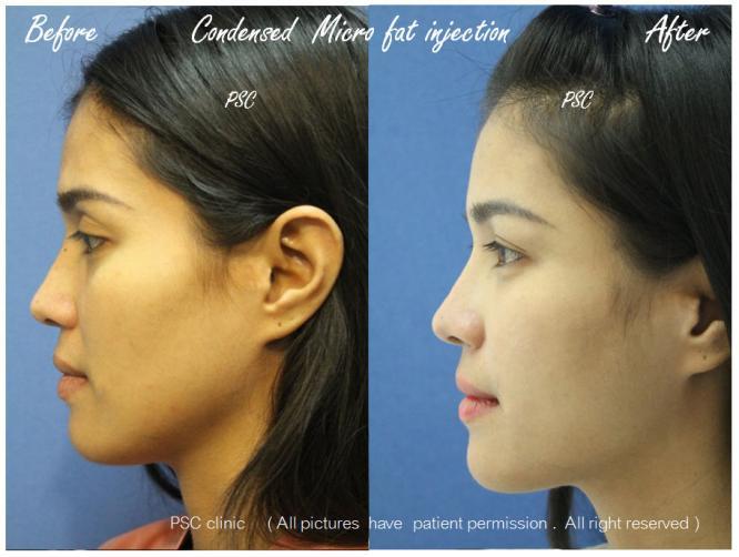 lateral - Facial Micro-Lipofilling Rejuvenation ( การฉีดไขมันที่หน้า เพื่อย้อนวัย)